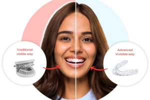 3D-printed clear aligner startup from India toothsi raises $20M
